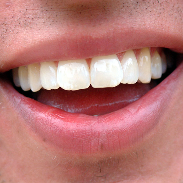 A very close-up photo of a man's gorgeous smile.
