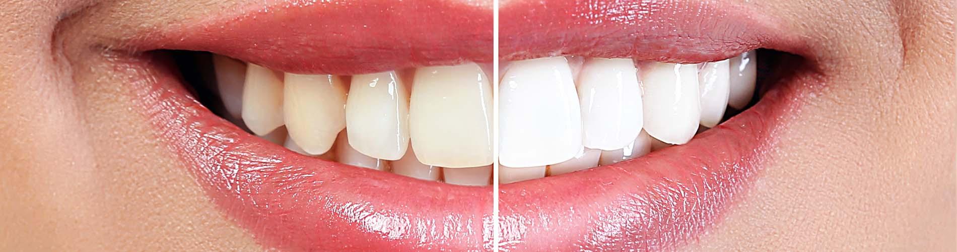 Teeth whitening Ripponden | Teeth whitening Ashton